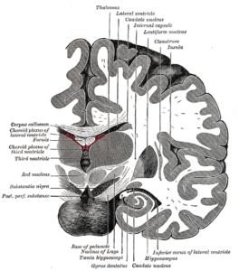 Hemipleji serebral palsi