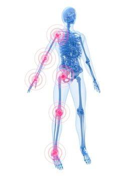 kireçlenme romatoid artrit ankilozan spondilit