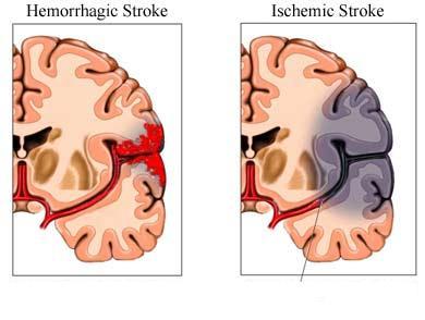 Beyin damarı pıhtısı