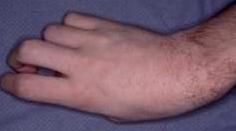 Serebral palsi deformitesi
