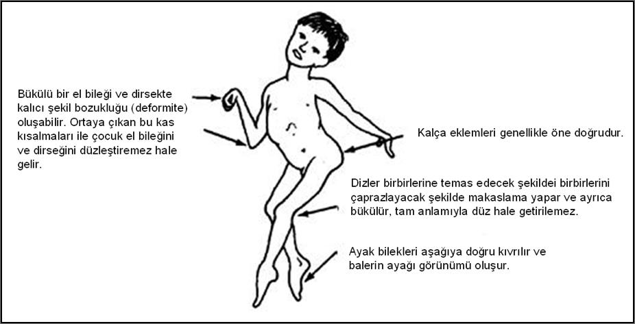 serebral palside deformiteler