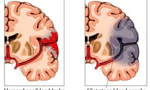 Beyin damarında pıhtı oluşması