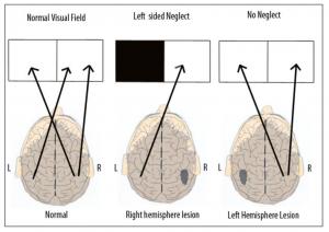 Hippoterapi (Atla Terapi) ile ilgili bilimsel yayınımız