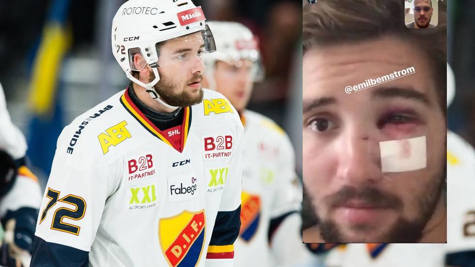 Djurgårdens NHL-forward skadad: